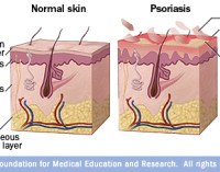 Skins Psoriasis and Cardiovascular Disease Risk