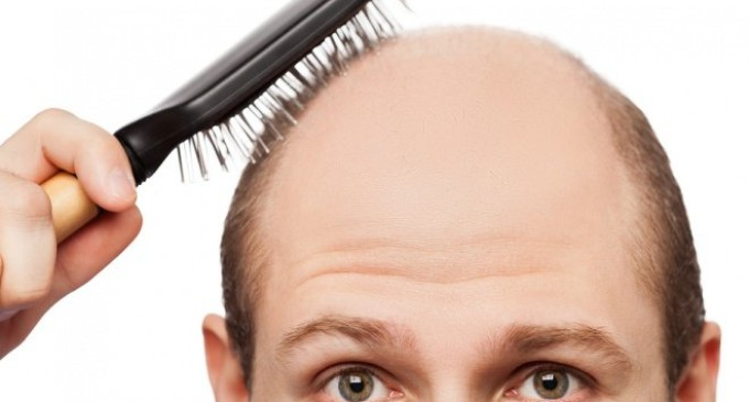 Is Hair Transplantation Surgery Safe?